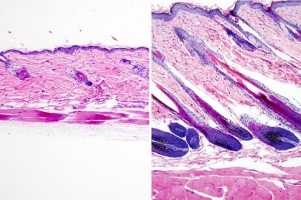 استفاده از لیزر روشی برای تکثیر سلول های بنیادی مو